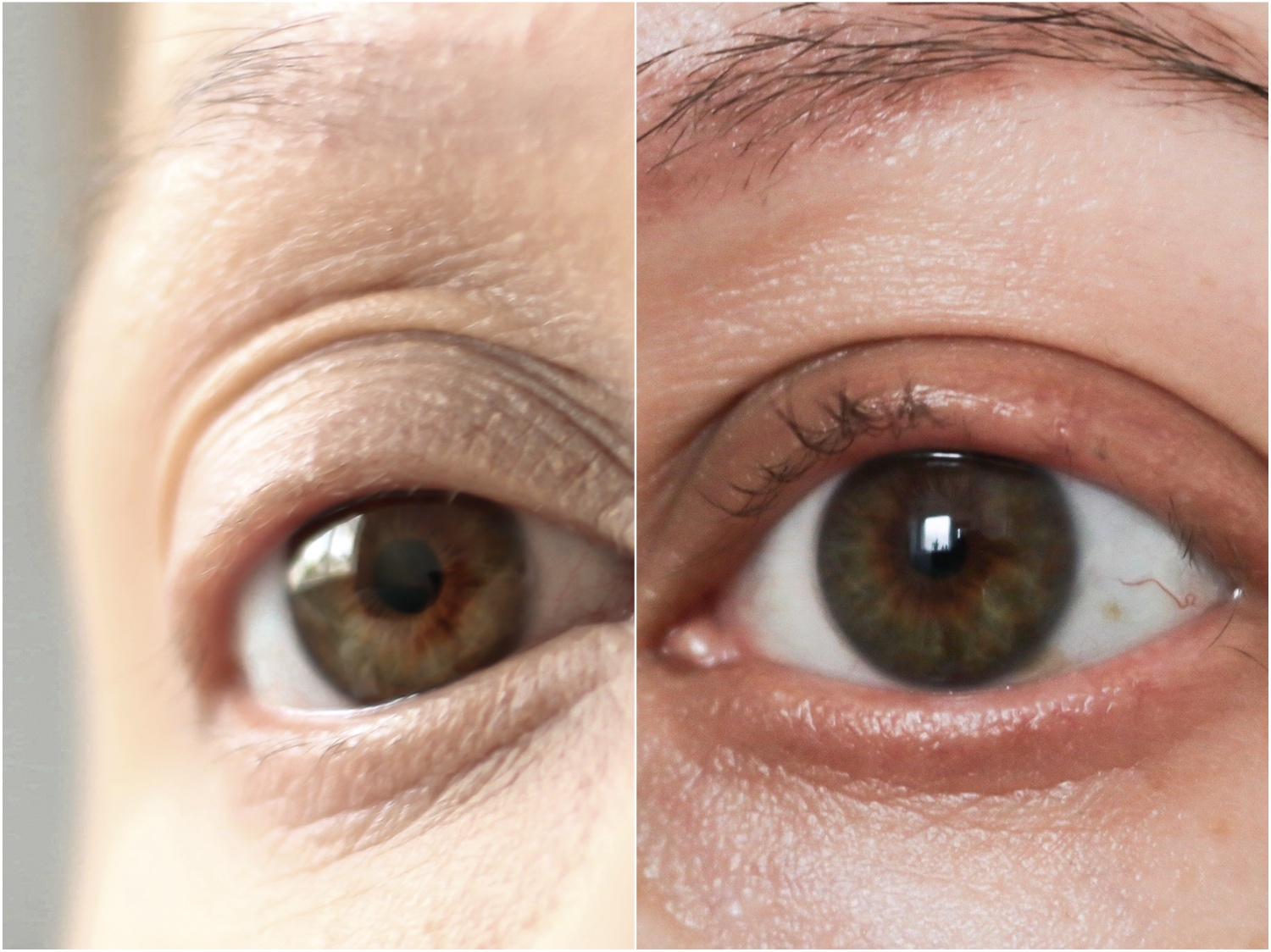 5cb3404d090 Ive seen some unbelievable before and afters so if a lash growth serum is  what you are looking for, i would wholeheartedly recommend the iGlow!