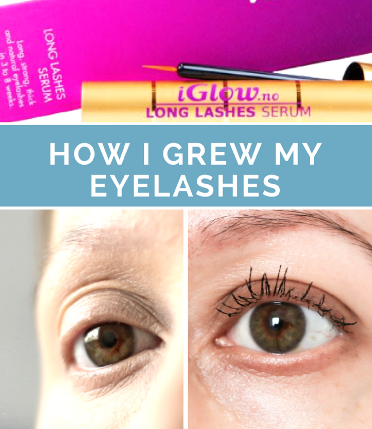 4fc608a10a0 iGlow Long Lashes Serum Review with Before and After Photos | Your ...